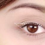 Mắt nhiều mí phải làm sao để khắc phục hiệu quả?