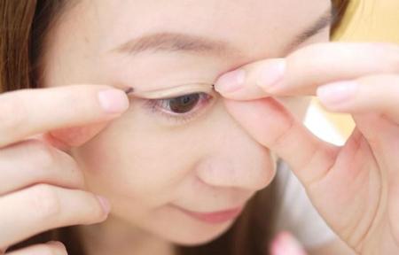 Hiểm họa khôn lường khi dùng chỉ kích mí mắt2