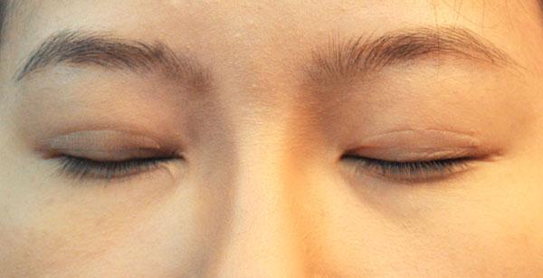 Hiểm họa khôn lường khi dùng chỉ kích mí mắt1