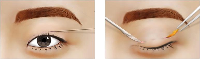 Hút mỡ mí mắt - Giải pháp thẩm mỹ cho đôi mắt trẻ trung4