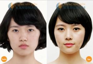 Thẩm mỹ mắt 2 mí vĩnh viễn tại TMV Kangnam hết bao nhiêu tiền?3
