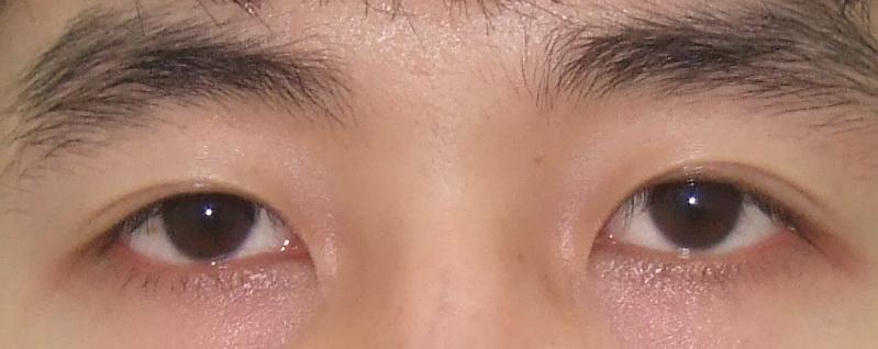 Phẫu thuật nâng mí mắt khắc phục tình trạng sụp mí?2