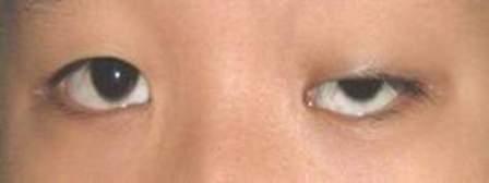 Phẫu thuật nâng mí mắt khắc phục tình trạng sụp mí?3