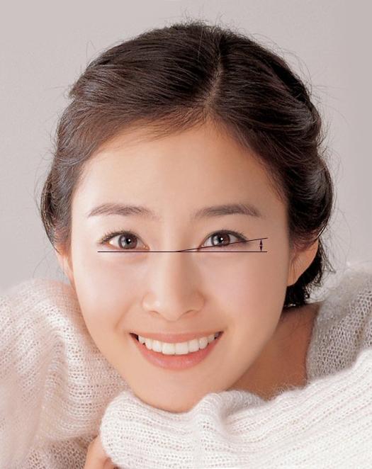 Cắt mắt to công nghệ mới nhất Hàn Quốc - Tạo đôi mắt đẹp hoàn hảo1