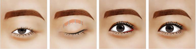 Cắt mắt to công nghệ mới nhất Hàn Quốc - Tạo đôi mắt đẹp hoàn hảo2