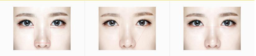 Cắt mắt to công nghệ mới nhất Hàn Quốc - Tạo đôi mắt đẹp hoàn hảo4