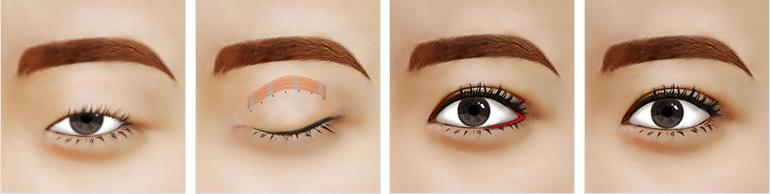 Làm gì để có đôi mắt đẹp toàn diện mà không cần make - up?2