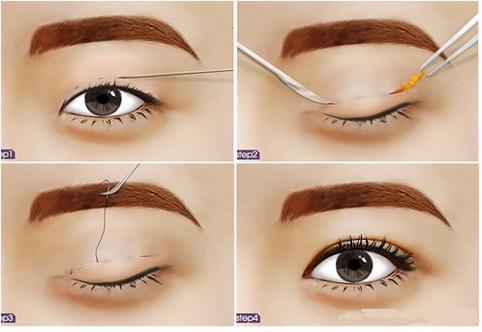 Mắt to hơn với keo tạo mắt 2 mí nhanh hiệu quả124