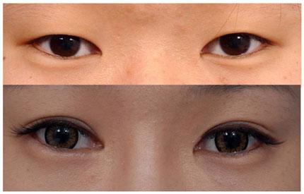 Bấm mí mắt Hàn Quốc vĩnh viễn - Quá đơn giản để có đôi mắt 2 mí trọn đời1