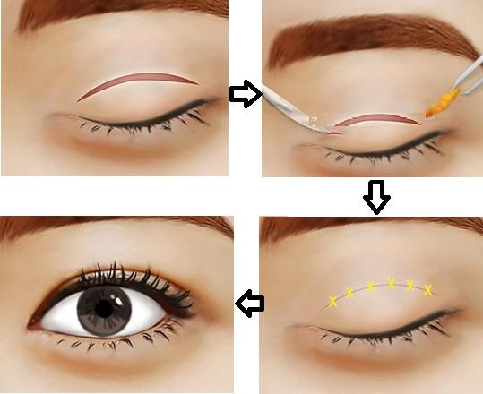 Cắt mí mắt trên - Giải pháp hoàn hảo khắc phục da chùng, mỡ thừa cho đôi mắt2