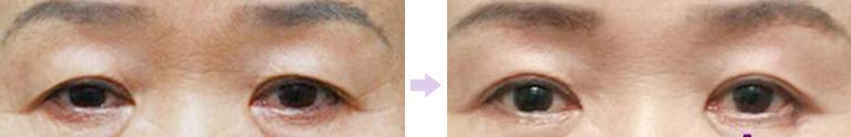 Cắt mí mắt trên - Giải pháp hoàn hảo khắc phục da chùng, mỡ thừa cho đôi mắt4