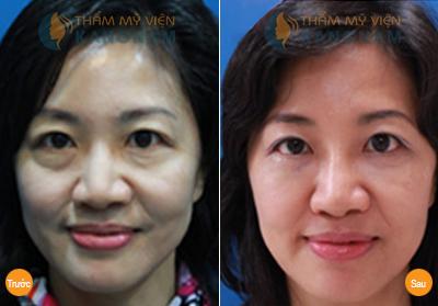 Điều trị sụp mí – cải thiện thị lực