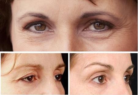Lấy lại nét thanh xuân nhờ phẫu thuật cắt da thừa mí mắt1