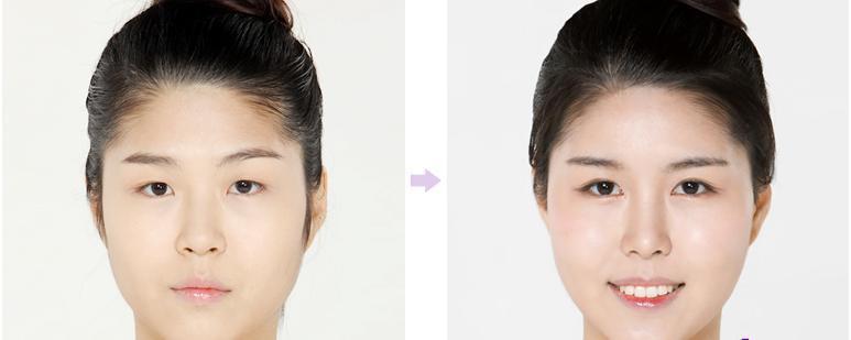 Trẻ đẹp hơn 10 tuổi với thẩm mỹ mắt to công nghệ Hàn Quốc6