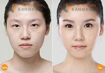 Chi phí tạo khóe mắt CN Hàn Quốc tại TMV Kangnam?5667