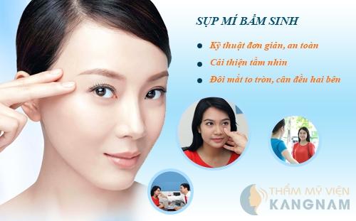 Chỉnh hình sụp mí bẩm sinh an toàn, hiệu quả tại TMV Kangnam4