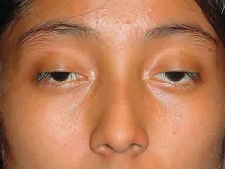Chỉnh hình sụp mí bẩm sinh có để lại sẹo xấu sau phẫu thuật?2