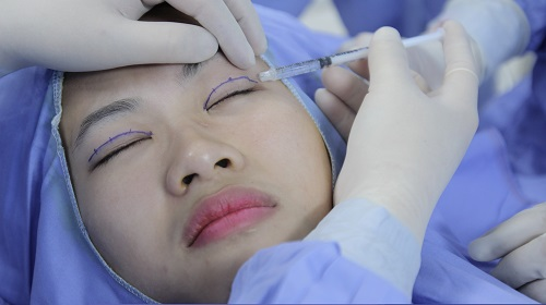 Chỉnh hình sụp mí bẩm sinh có để lại sẹo xấu sau phẫu thuật?3