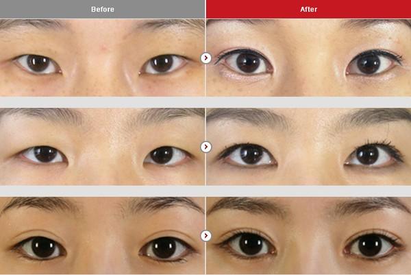 Chỉnh hình sụp mí bẩm sinh – Mắt đẹp, to, tròn với quy trình đơn giản1