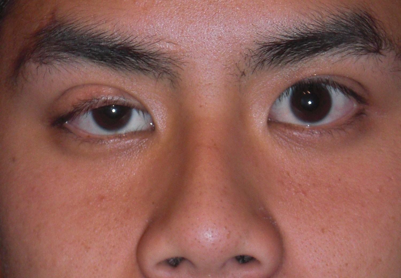 Cắt mí mắt cho nam giới tại thẩm mỹ viện kangnam