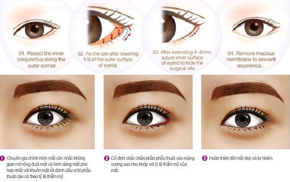Sau phẫu thuật tạo khóe mắt Hàn Quốc có để lại sẹo xấu không?3