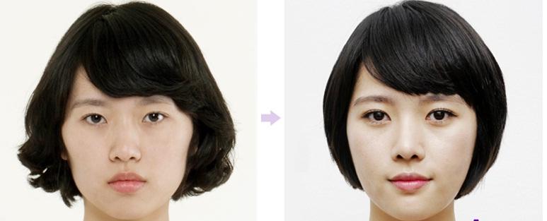 Tại Kangnam kết quả tạo khóe mắt Hàn Quốc như thế nào?1