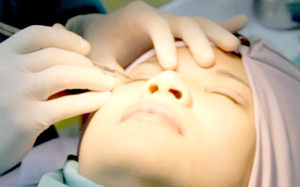 Thực hiện chỉnh hình sụp mí bẩm sinh có đau không?3