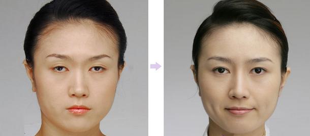 Chỉnh hình sụp mí bẩm sinh - Bước đột phá mới công nghệ thẩm mỹ mắt4