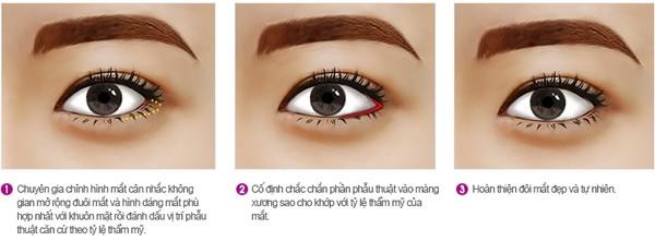 Có cách nào giúp khắc phục mắt nhỏ, khoảng cách 2 mắt quá hẹp?1