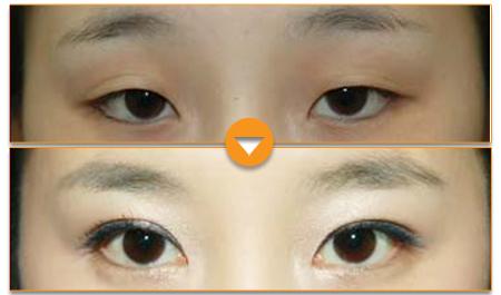 Có cách nào giúp khắc phục mắt nhỏ, khoảng cách 2 mắt quá hẹp?4