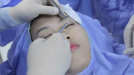 Có phương pháp thẩm mỹ nào giúp tạo đôi mắt 2 mí vĩnh viễn không?2