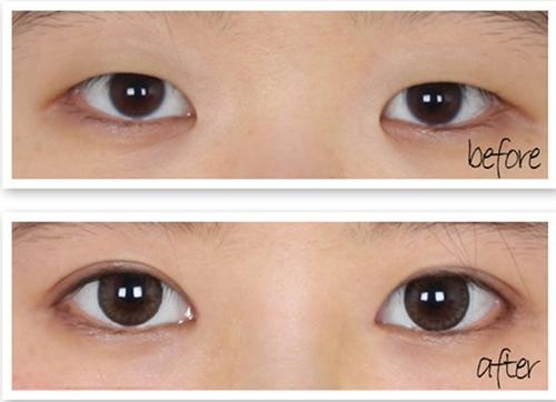 Có phương pháp thẩm mỹ nào giúp tạo đôi mắt 2 mí vĩnh viễn không?3