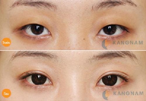 Giải pháp hoàn hảo giúp bạn sở hữu đôi mắt 2 mí đẹp trọn đời3