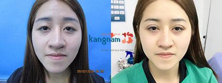 kết quả bấm mí mắt dove eyes kangnam 5