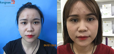 kết quả bấm mí mắt dove eyes kangnam 4