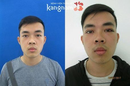 kết quả bấm mí mắt dove eyes kangnam 2
