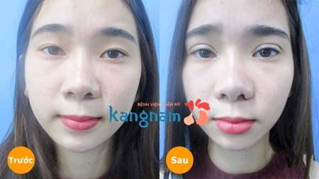 kết quả bấm mí mắt dove eyes kangnam 1