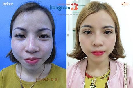 Phẫu thuật thẩm mỹ mắt to có tốn nhiều thời gian không 4
