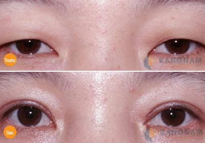 Mắt 1 mí kém xinh và những chia sẻ của người trong cuộc