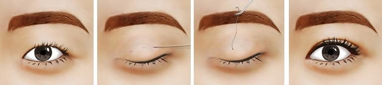 Mắt 2 mí cực xinh chỉ trong nháy mắt4