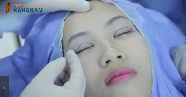 Trả lại nét xuân cho đôi mắt với cắt mí theo công nghệ Hàn Quốc4