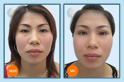 Trả lại nét xuân cho đôi mắt với cắt mí theo công nghệ Hàn Quốc6