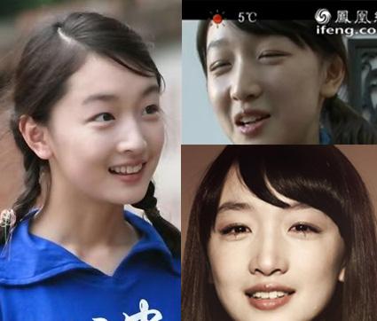 đôi mắt cô ngày càng long lanh hơn nhờ phẫu thuật cắt mí8