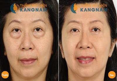 tre mai khong gia voi 5 phuong phap gi%C3%BAp xoa tan bong mo mi mat10 Bọng mỡ mí mắt và cách khắc phục
