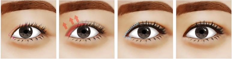 Mở rộng góc mắt giúp khắc phục mắt to mắt nhỏ hiệu quả