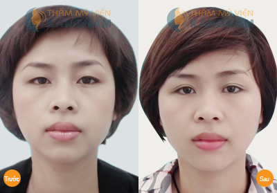 Chuyện kể về những đôi mắt bồ câu đẹp nhất màn ảnh Việt10