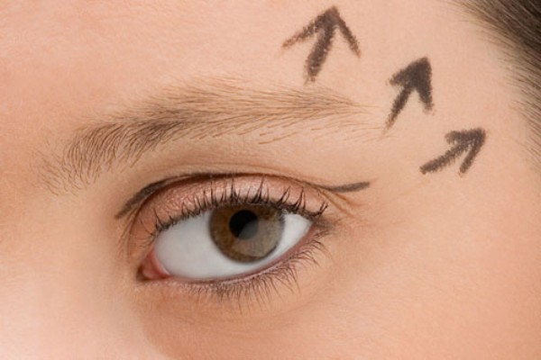 Những trường hợp nào nên áp dụng công nghệ thẩm mỹ mắt to?1