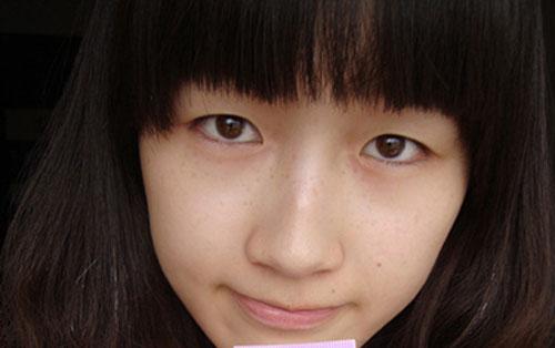 """Thoát khỏi thảm cảnh """"mắt bồ câu ngủ"""" với bấm mí Hàn Quốc Dove Eyes1"""