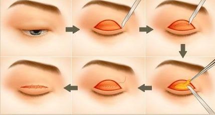 Di chứng và những lưu ý khi tiến hành phẫu thuật cắt mí mắt4