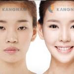 [GIẢI ĐÁP] Liệu cắt mí mắt có để lại sẹo không từ CHUYÊN GIA?